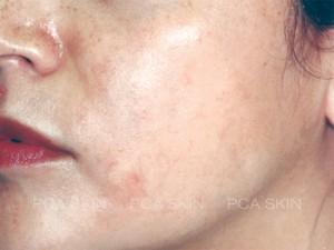 hyperpigmentation-after-3