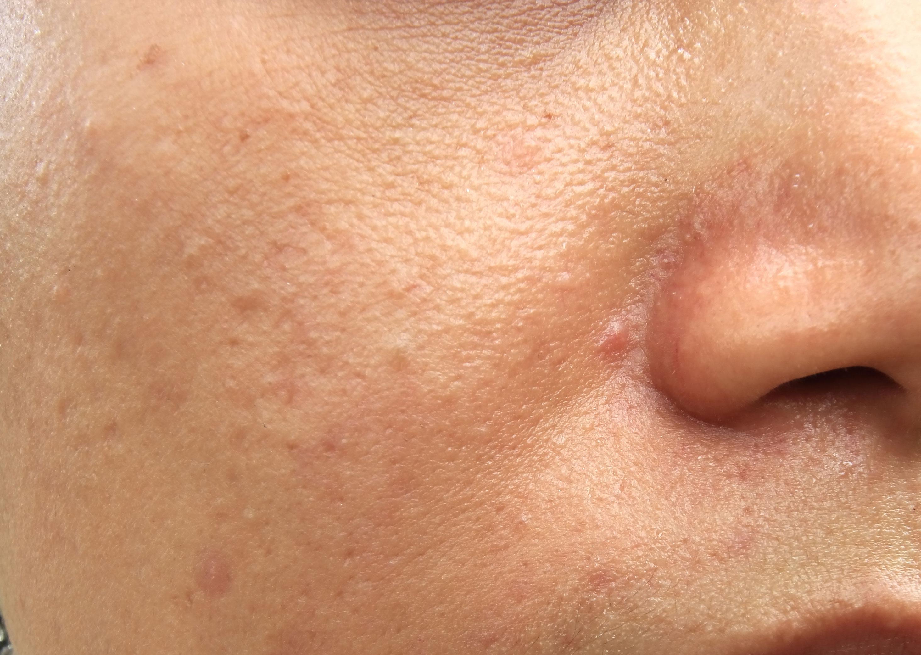 fuktighetskrem fet hud